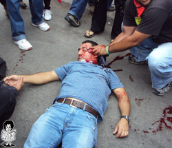 Roger Vallejo Soriano, in a condition Venezuelans and Nicaraguans might define as bloody. (Photo: La Tribuna)